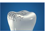 Pasta do zębów parodontgel - naprawia szkliwo