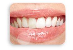 Szczoteczka Sonicare wybiela zęby a także dokładnie je czyści